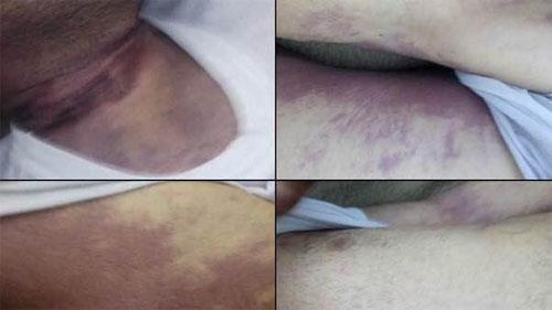 آثار شکنجه بر جسد پاسدار کشته شده توسط حفاظت اطلاعات سپاه پاسداران