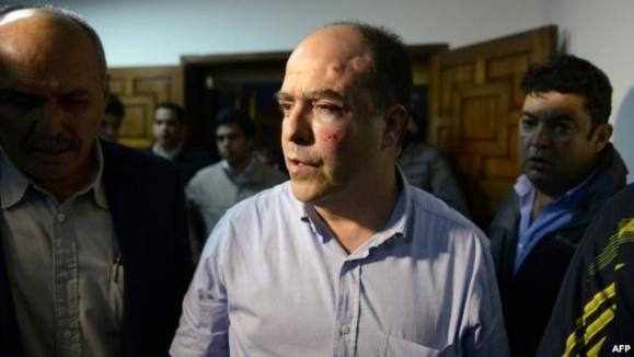 تنش سیاسی در ونزوئلا به زد و خورد شدید نمایندگان پارلمان انجامید
