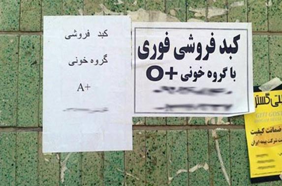 در ایران ..فروش اعضای بدن نیز انترنتی شد