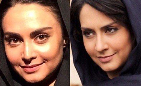 ابراز پشیمانی بازیگر زن ایرانی از جراحی بینی خود؛ خدارحمی: ریسک بزرگی کردم + تصاویر