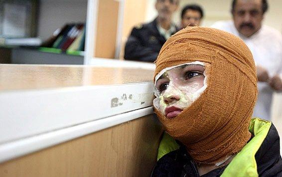 اعتراف کارگزاران رژیم به مرگ روزانه ۱۰نفر در ایران بهدلیل سوختگی
