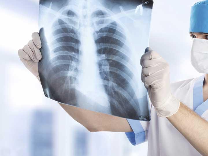 آشنایی با بیماری آزبستوز