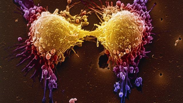 راز دانش: نقش مثبت تزریق ویتامین ث در مبارزه با سرطان