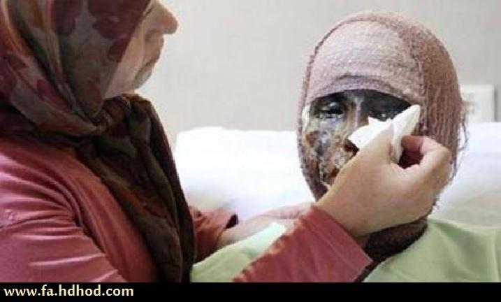 اعتراف رئیس پلیس ایران به گسترش فرهنگ ننگین اسید پاشی در جامعه