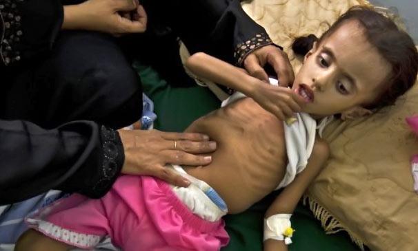 سوء تغذیه جان مادران و کودکان بلوچ را در معرض خطر قرار داده