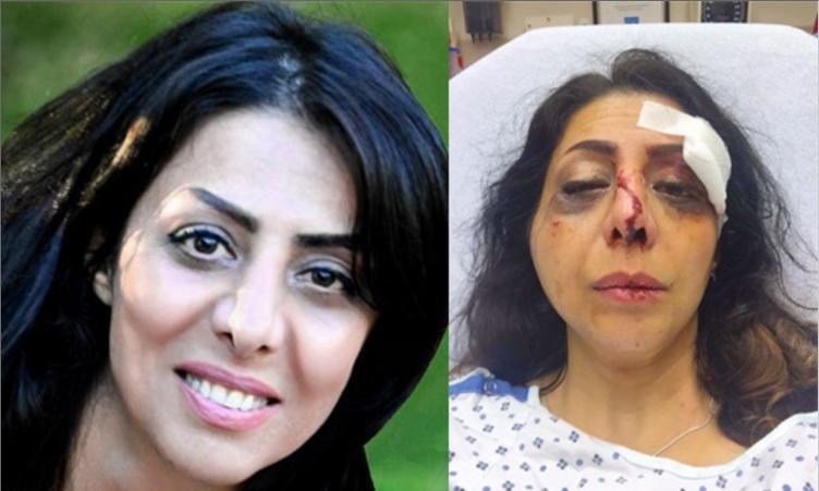 حمله داعشانه عوامل رژیم تهران در واشنگتن به  یک روزنامه نگار زن وفعال حقوق بشری