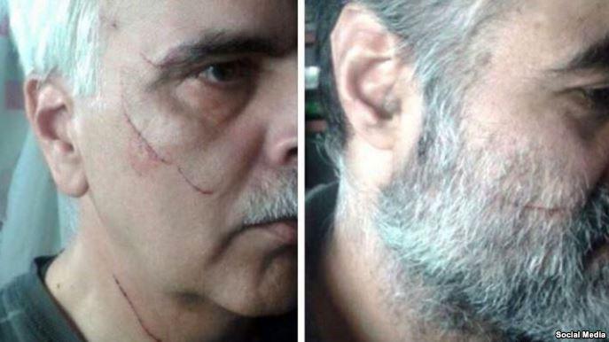 سعید رضوی فقیه، سمت راست و سعید مدنی سمت چپ مورد حمله قرار گرفته اند.