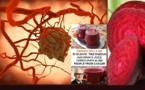 پژوهشگر اتریشی معجون معجزه آسای درمان سرطان را کشف کرد